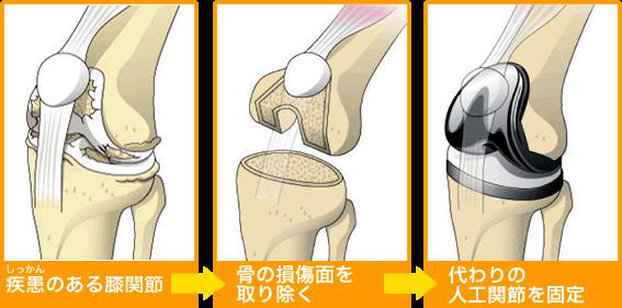 人工膝関節置換術(TKA)
